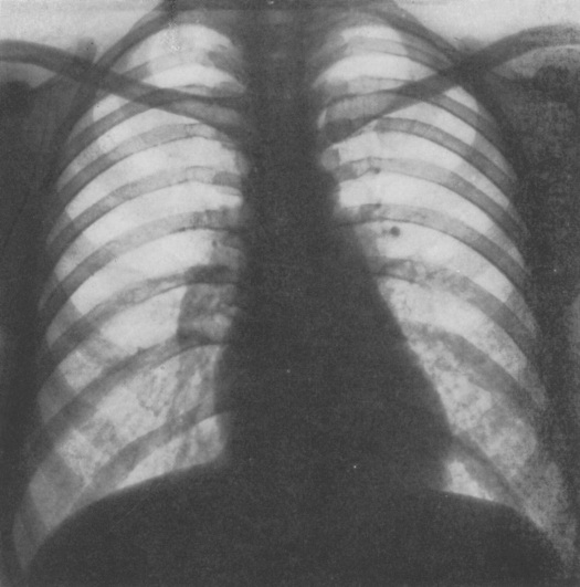 1Type 1, Influenza bronchopneumonia