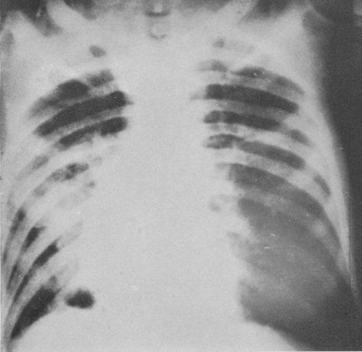 2Type 1, Influenza bronchopneumonia_Viewed as from behind