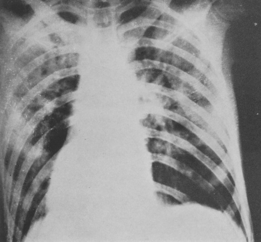 5Type 3, resembling streptococcal (septic) pneumonia