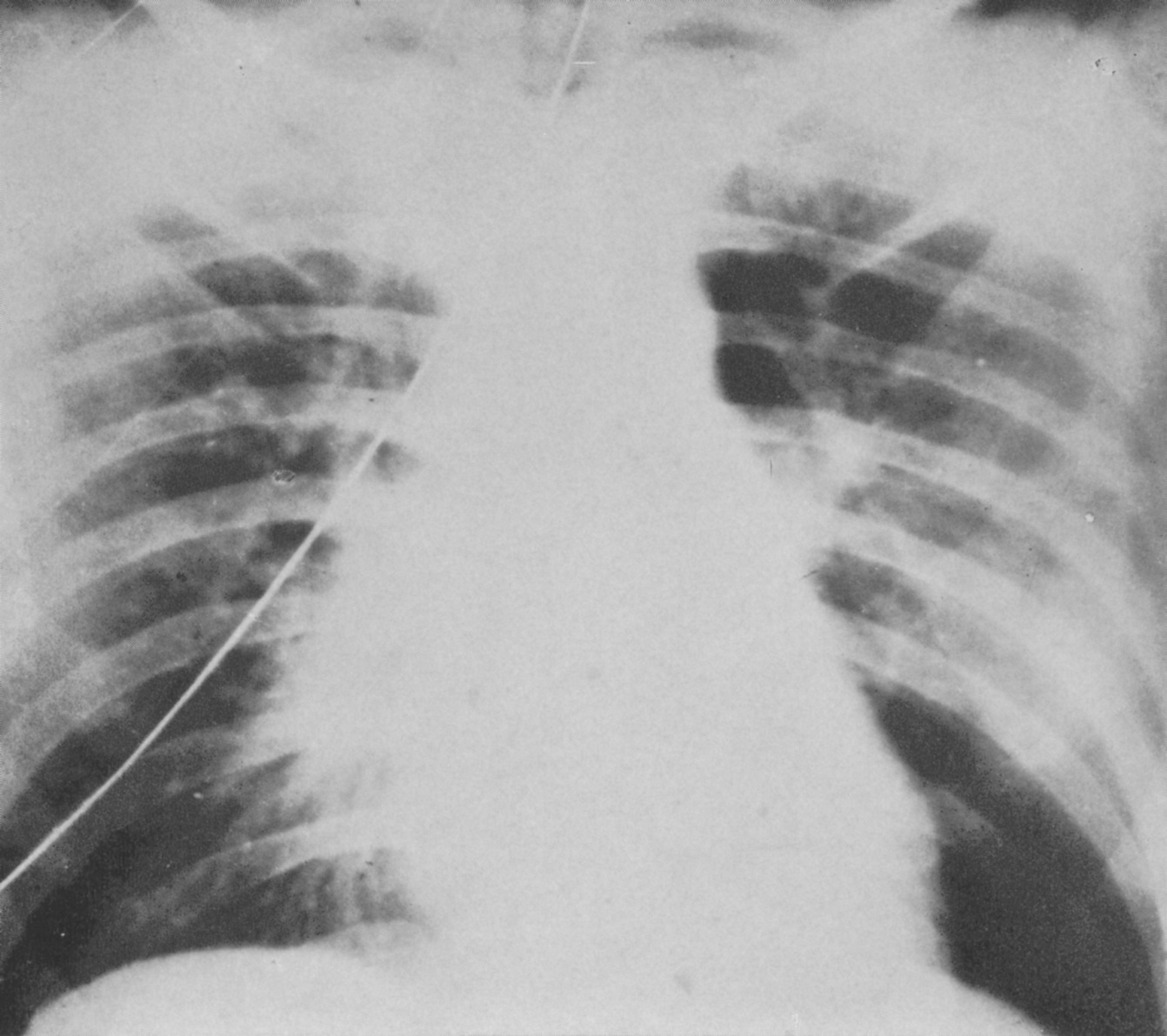 "6Type 4, the so-called ""critical pneumonia"