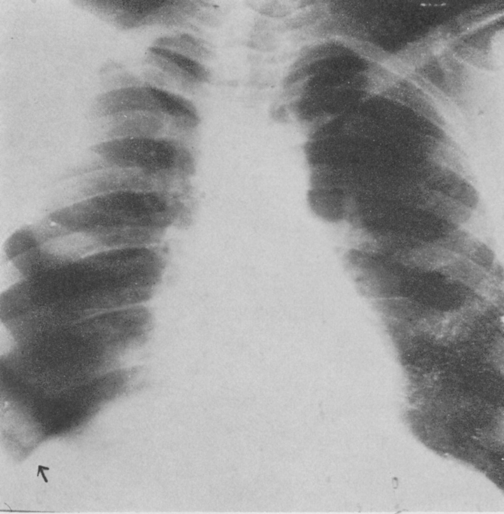7a Type 5. This started in the dependent part of the lungs